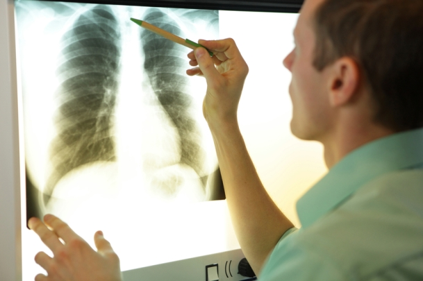 respiratory SCE.jpg